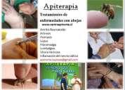 Apiterapia en iquique