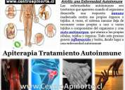 Artritis trataminto en iquique