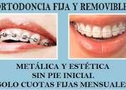 Dentistas ortodoncia en viña del mar clínica dental alexliz